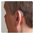 耳硬化症治疗方法