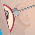 耳硬化症治疗首选听小骨移移植术