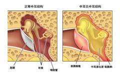 耳朵里积液是怎么回事?当心患上中耳炎